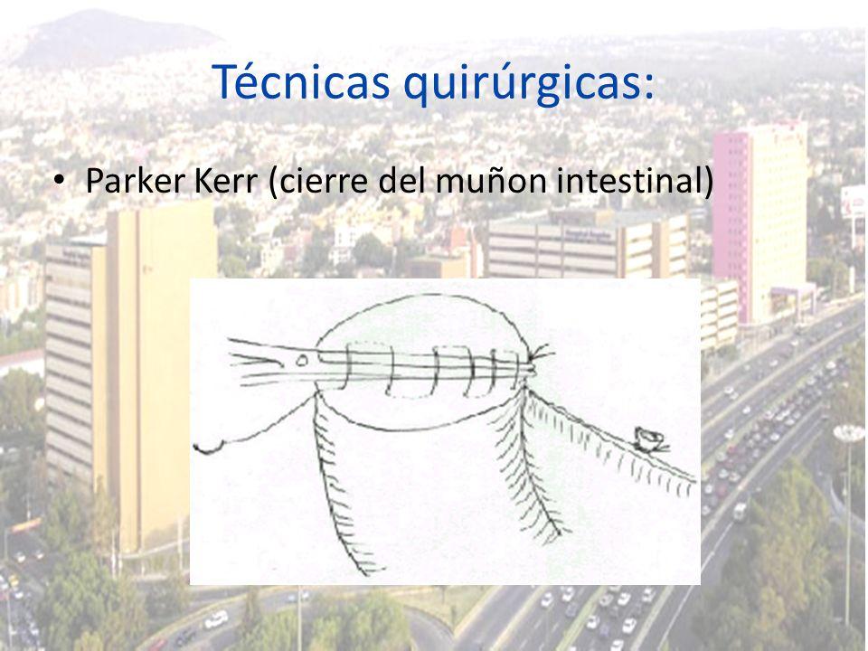 Técnicas quirúrgicas: Parker Kerr (cierre del muñon intestinal)