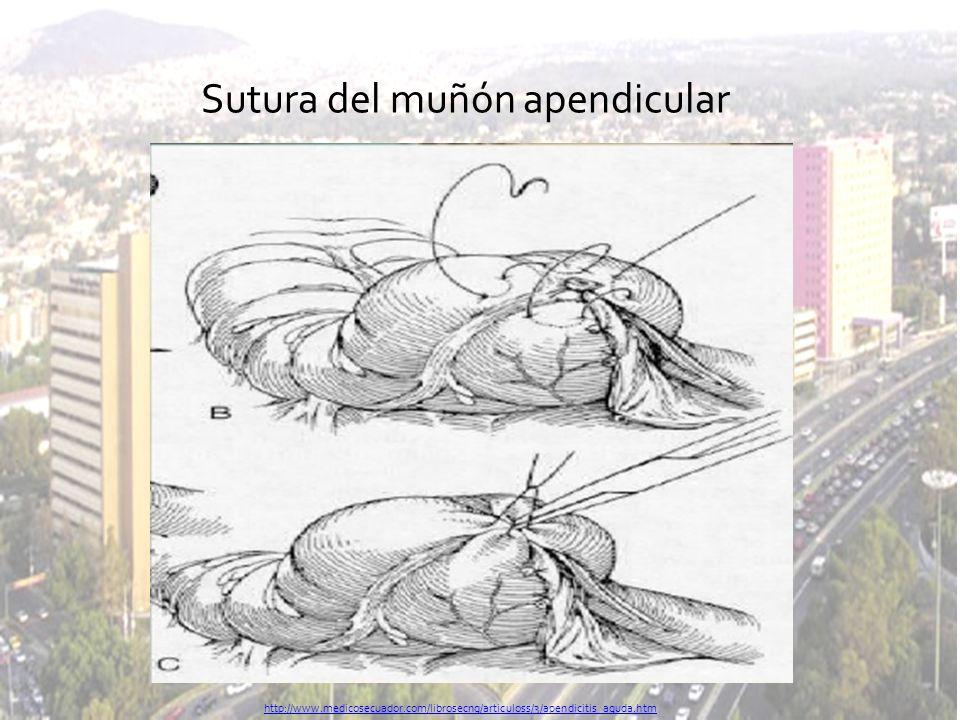 Sutura del muñón apendicular http://www.medicosecuador.com/librosecng/articuloss/3/apendicitis_aguda.htm