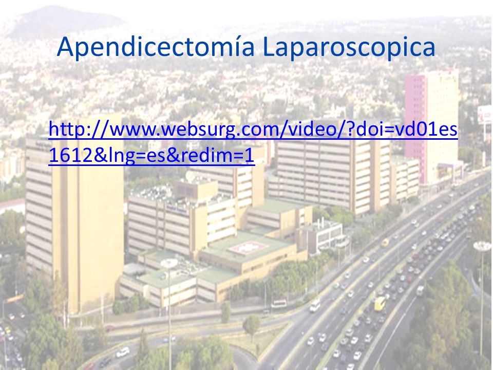 Apendicectomía Laparoscopica http://www.websurg.com/video/?doi=vd01es 1612&lng=es&redim=1