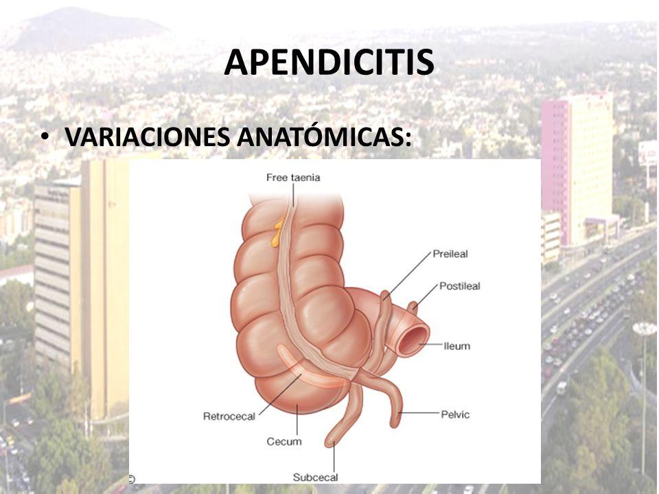 APENDICITIS VARIACIONES ANATÓMICAS: