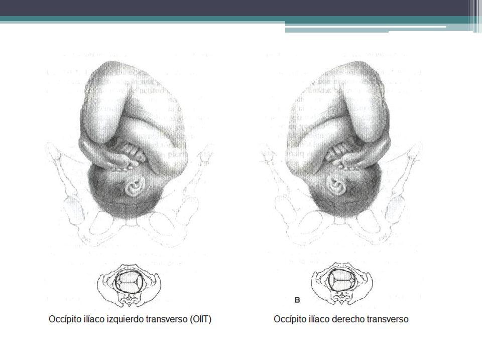 DETENCIÓN TRANSVERSA PROFUNDA Es una anormalidad en la segunda etapa en la que el feto conserva una posición occipitotransversa (OT) en una estación pélvica baja.