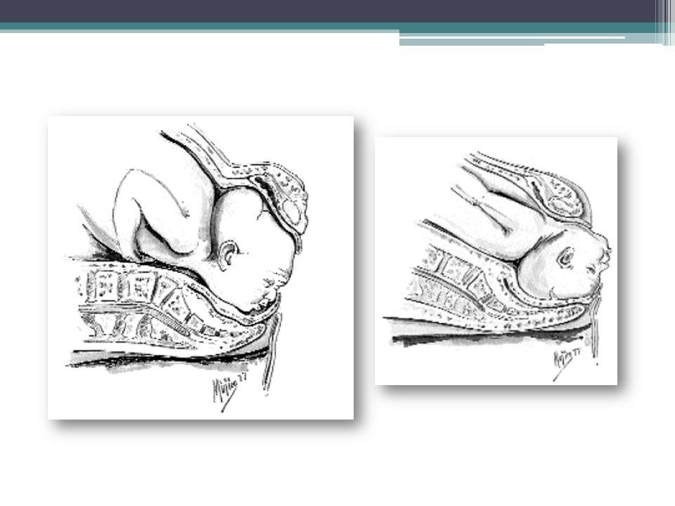 PRESENTACIÓN DE NALGAS Es la alineación polar del feto en la cual se presentan los glúteos fetales en el estrecho pélvico superior materno.