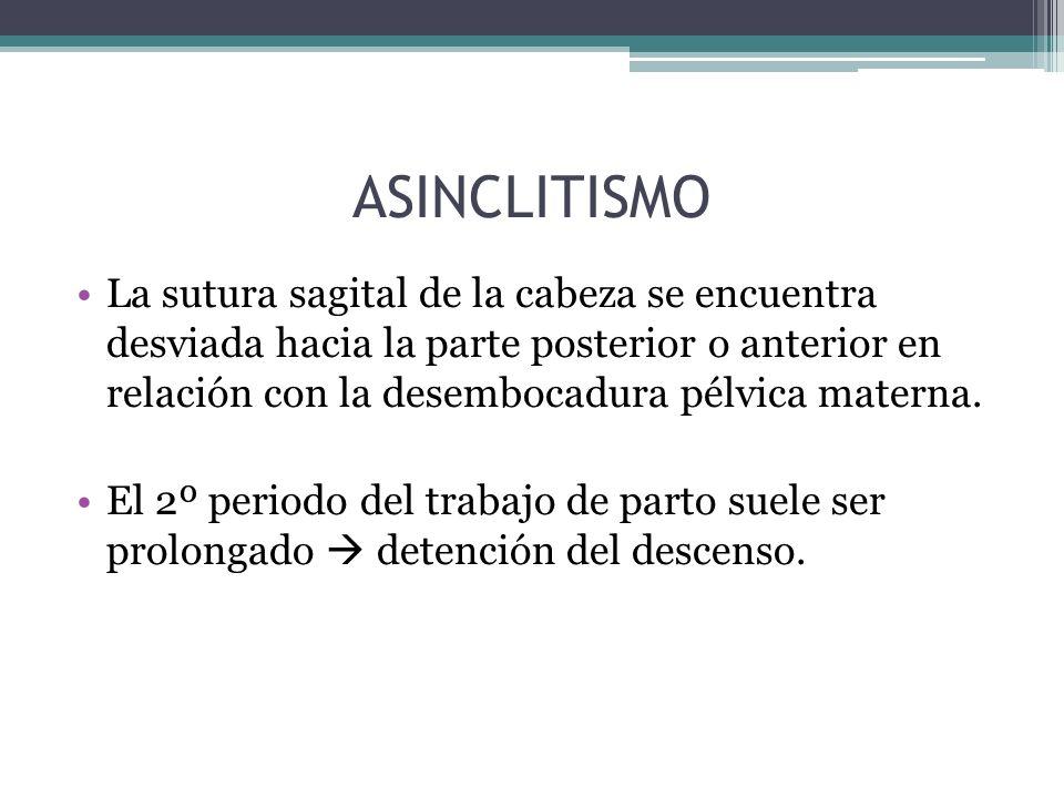 ASINCLITISMO La sutura sagital de la cabeza se encuentra desviada hacia la parte posterior o anterior en relación con la desembocadura pélvica materna