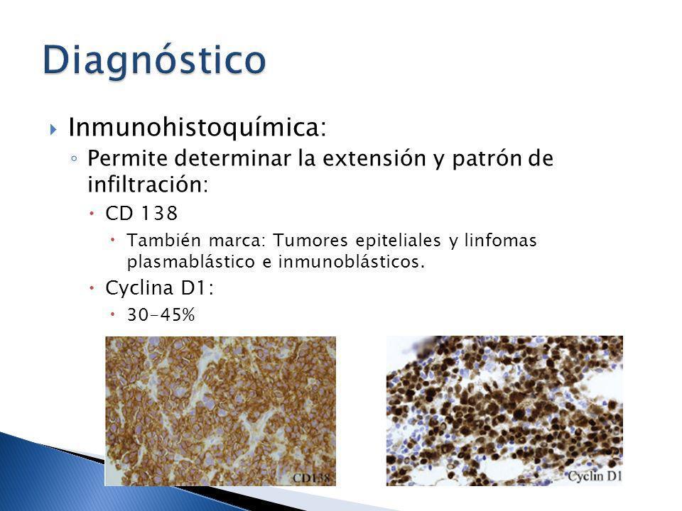 Inmunohistoquímica: Permite determinar la extensión y patrón de infiltración: CD 138 También marca: Tumores epiteliales y linfomas plasmablástico e in