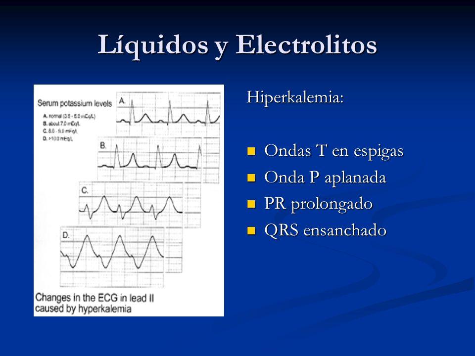 Líquidos y Electrolitos Hiperkalemia: Ondas T en espigas Onda P aplanada PR prolongado QRS ensanchado