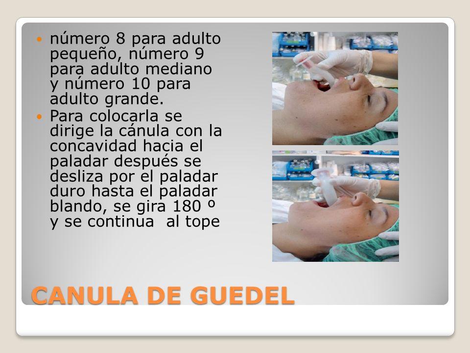 CANULA DE GUEDEL número 8 para adulto pequeño, número 9 para adulto mediano y número 10 para adulto grande.