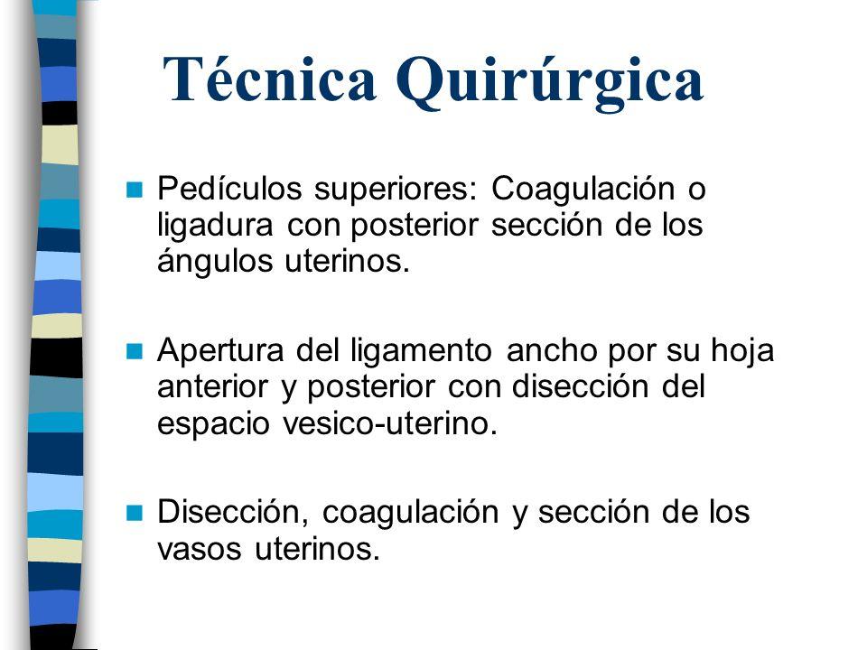 Técnica Quirúrgica Pedículos superiores: Coagulación o ligadura con posterior sección de los ángulos uterinos. Apertura del ligamento ancho por su hoj