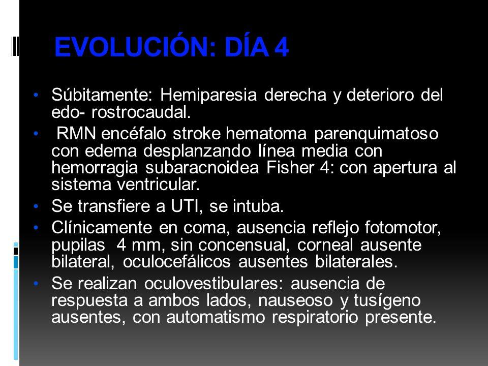 EVOLUCIÓN: DÍA 4 Súbitamente: Hemiparesia derecha y deterioro del edo- rostrocaudal. RMN encéfalo stroke hematoma parenquimatoso con edema desplanzand
