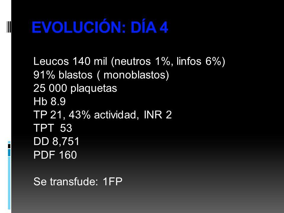 EVOLUCIÓN: DÍA 4 Leucos 140 mil (neutros 1%, linfos 6%) 91% blastos ( monoblastos) 25 000 plaquetas Hb 8.9 TP 21, 43% actividad, INR 2 TPT 53 DD 8,751