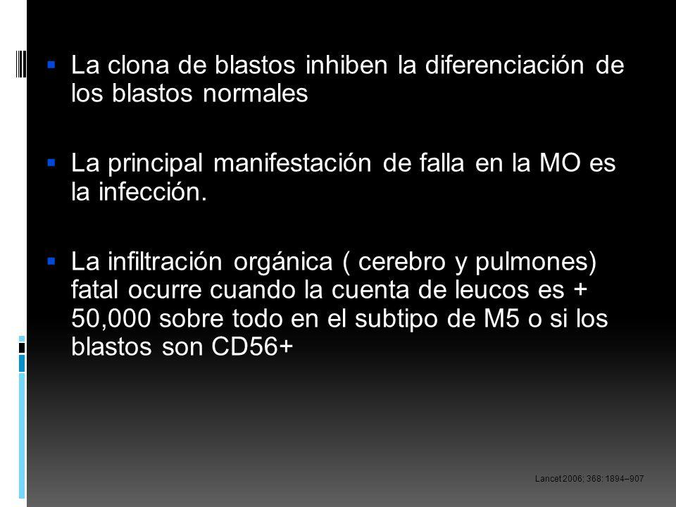 La clona de blastos inhiben la diferenciación de los blastos normales La principal manifestación de falla en la MO es la infección. La infiltración or