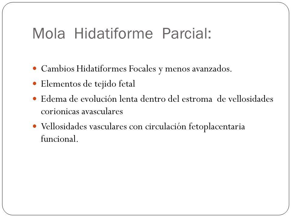 Mola Hidatiforme Parcial: Cambios Hidatiformes Focales y menos avanzados. Elementos de tejido fetal Edema de evolución lenta dentro del estroma de vel