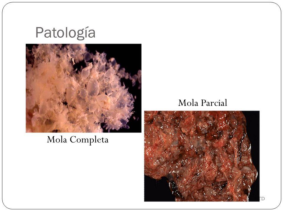 GTD Mola Completa Mola Parcial Patología