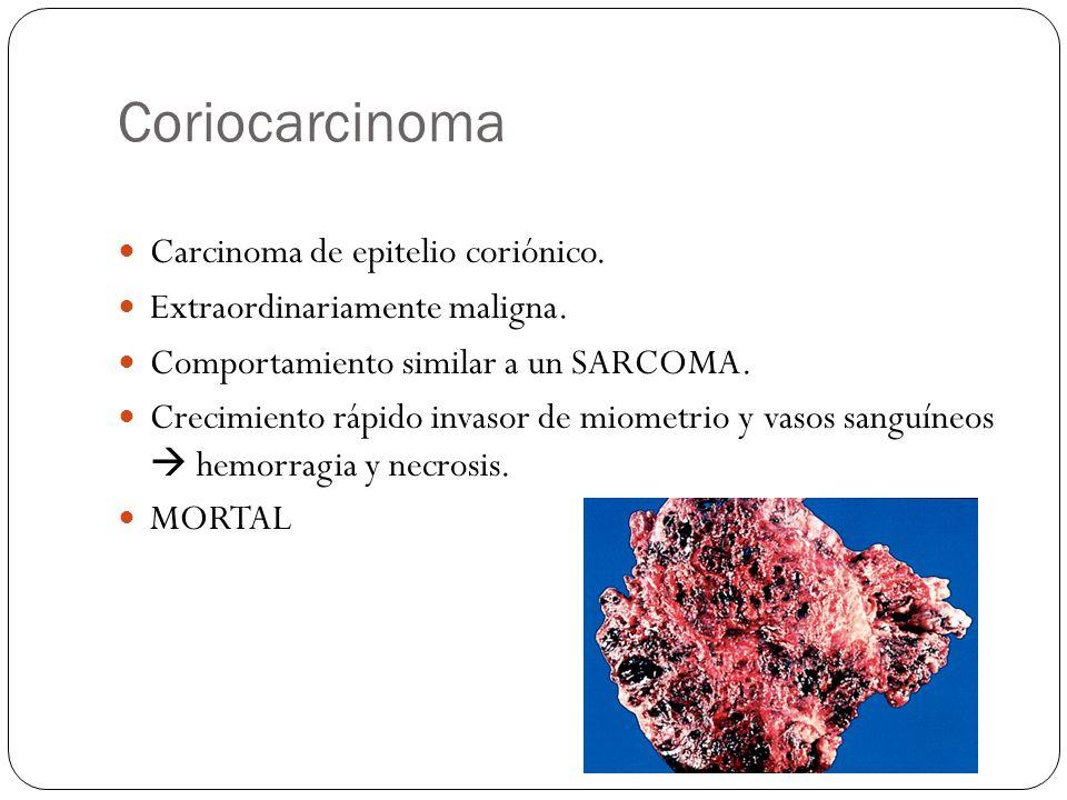 Coriocarcinoma Carcinoma de epitelio coriónico. Extraordinariamente maligna. Comportamiento similar a un SARCOMA. Crecimiento rápido invasor de miomet