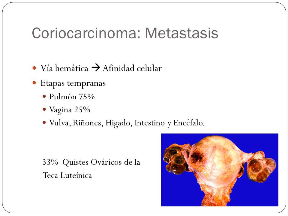 Coriocarcinoma: Metastasis Vía hemática Afinidad celular Etapas tempranas Pulmón 75% Vagina 25% Vulva, Riñones, Higado, Intestino y Encéfalo. 33% Quis