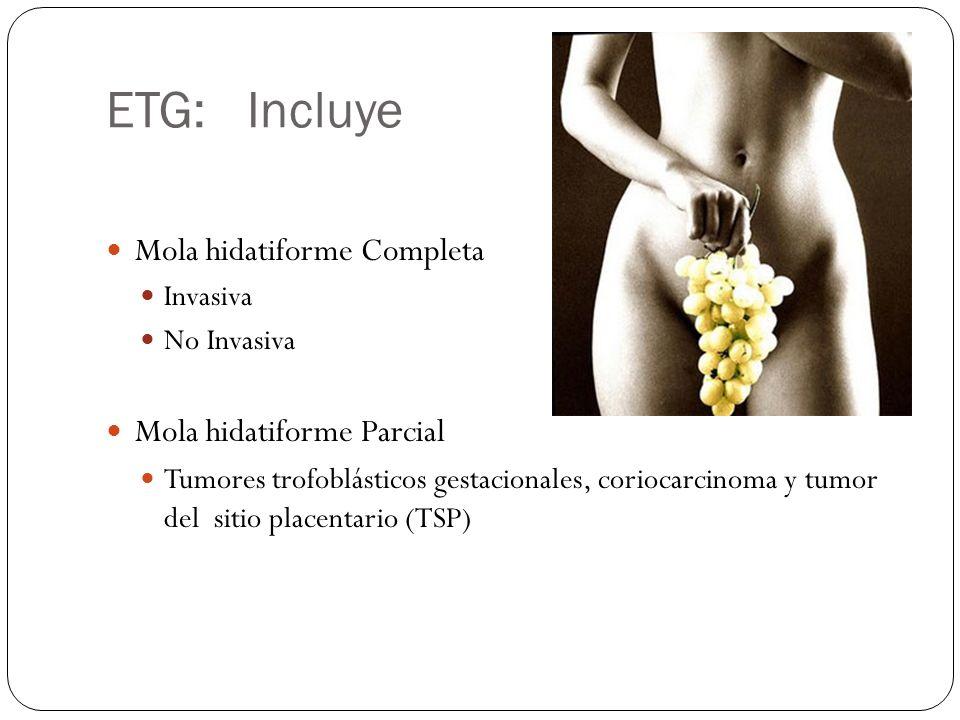 ETG: Incluye Mola hidatiforme Completa Invasiva No Invasiva Mola hidatiforme Parcial Tumores trofoblásticos gestacionales, coriocarcinoma y tumor del