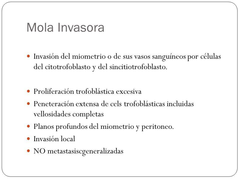 Mola Invasora Invasión del miometrio o de sus vasos sanguíneos por células del citotrofoblasto y del sincitiotrofoblasto. Proliferación trofoblástica