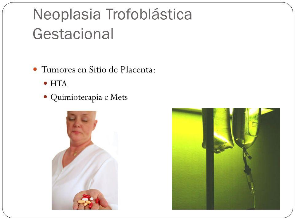 Neoplasia Trofoblástica Gestacional Tumores en Sitio de Placenta: HTA Quimioterapia c Mets