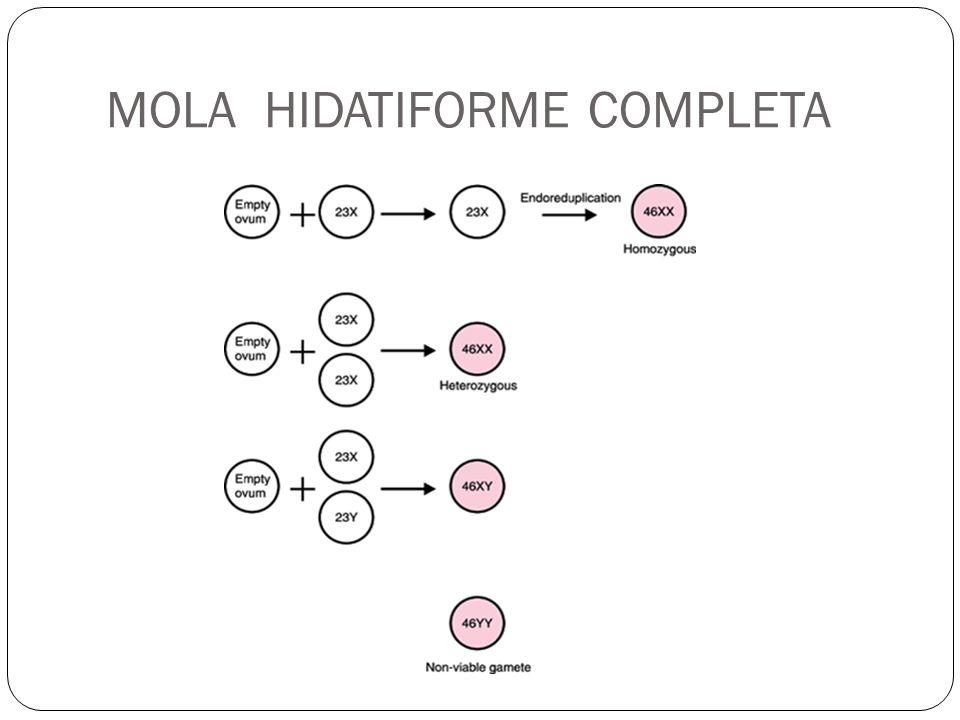 MOLA HIDATIFORME COMPLETA