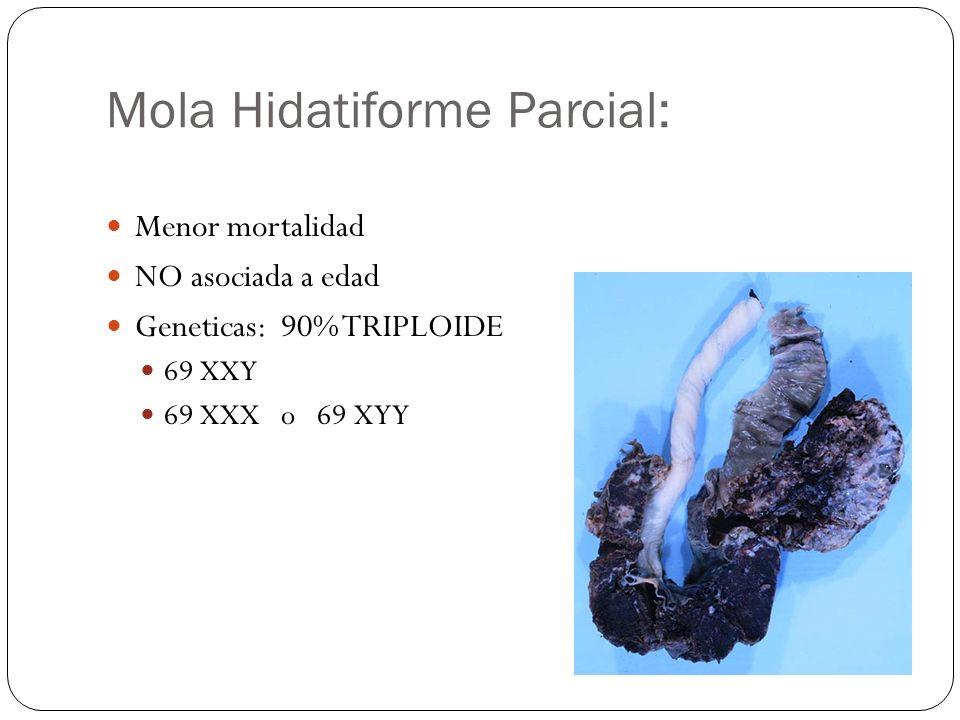 Mola Hidatiforme Parcial: Menor mortalidad NO asociada a edad Geneticas: 90% TRIPLOIDE 69 XXY 69 XXX o 69 XYY