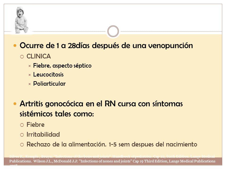 Ocurre de 1 a 28días después de una venopunción CLINICA Fiebre, aspecto séptico Leucocitosis Poliarticular Artritis gonocócica en el RN cursa con sínt