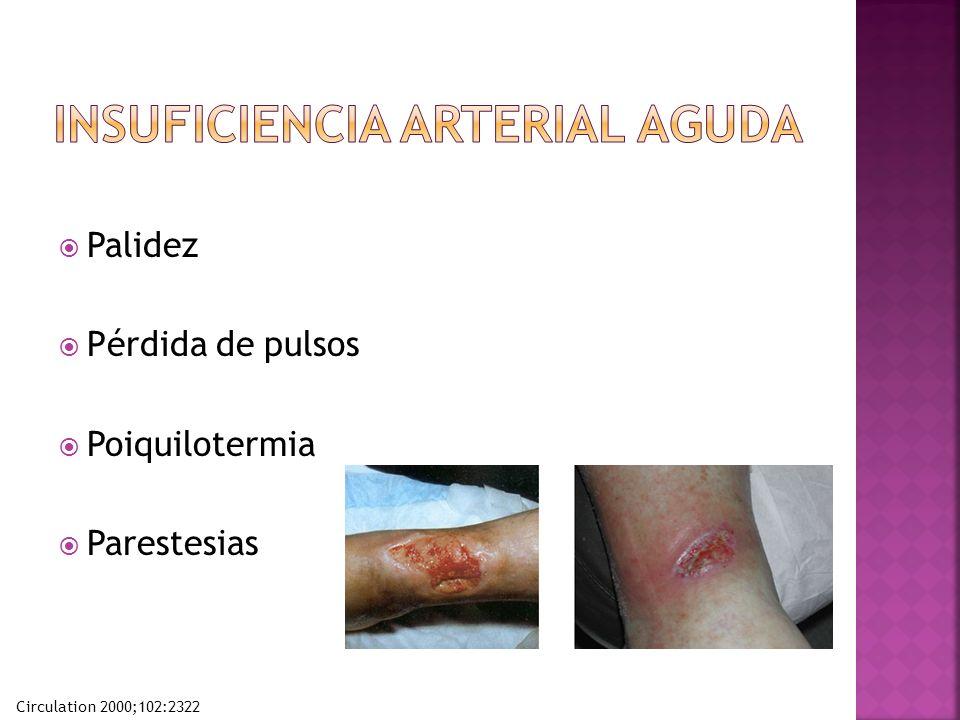 Palidez Pérdida de pulsos Poiquilotermia Parestesias Circulation 2000;102:2322