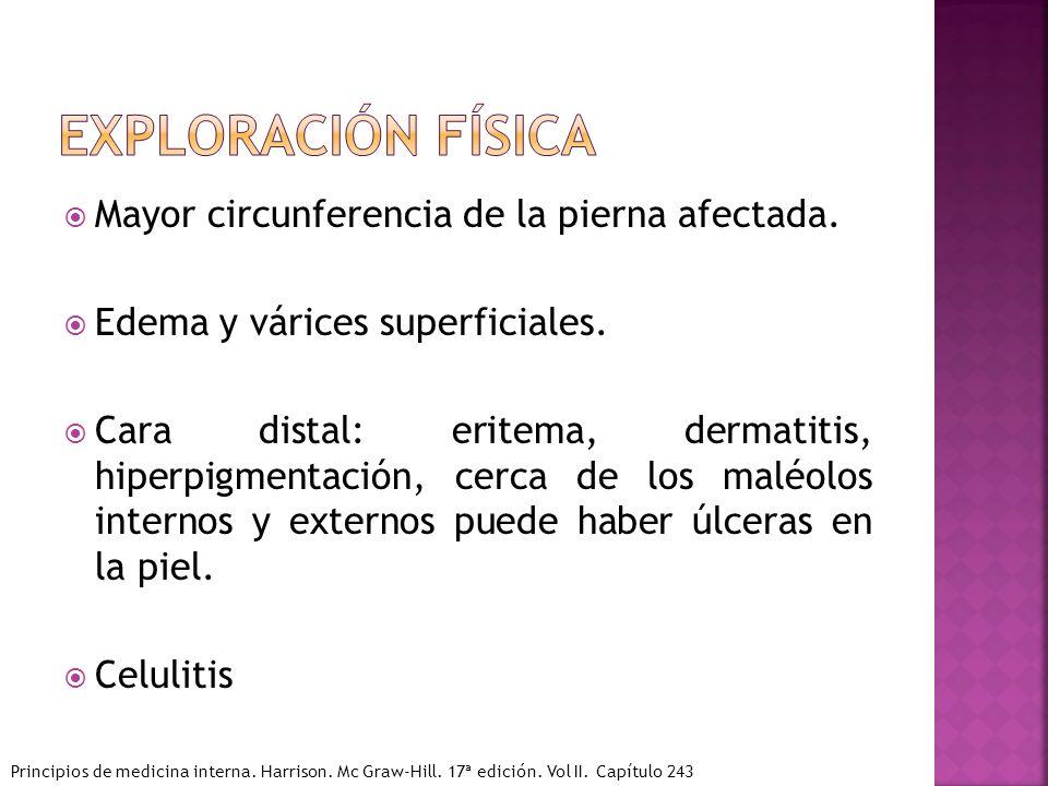 Mayor circunferencia de la pierna afectada. Edema y várices superficiales. Cara distal: eritema, dermatitis, hiperpigmentación, cerca de los maléolos