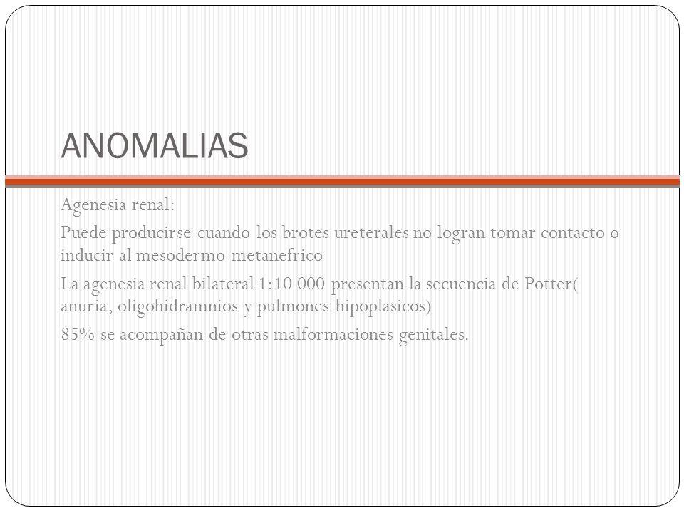 ANOMALIAS Agenesia renal: Puede producirse cuando los brotes ureterales no logran tomar contacto o inducir al mesodermo metanefrico La agenesia renal