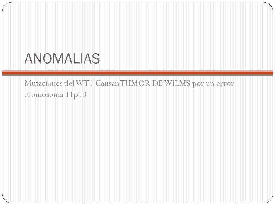 ANOMALIAS Mutaciones del WT1 Causan TUMOR DE WILMS por un error cromosoma 11p13