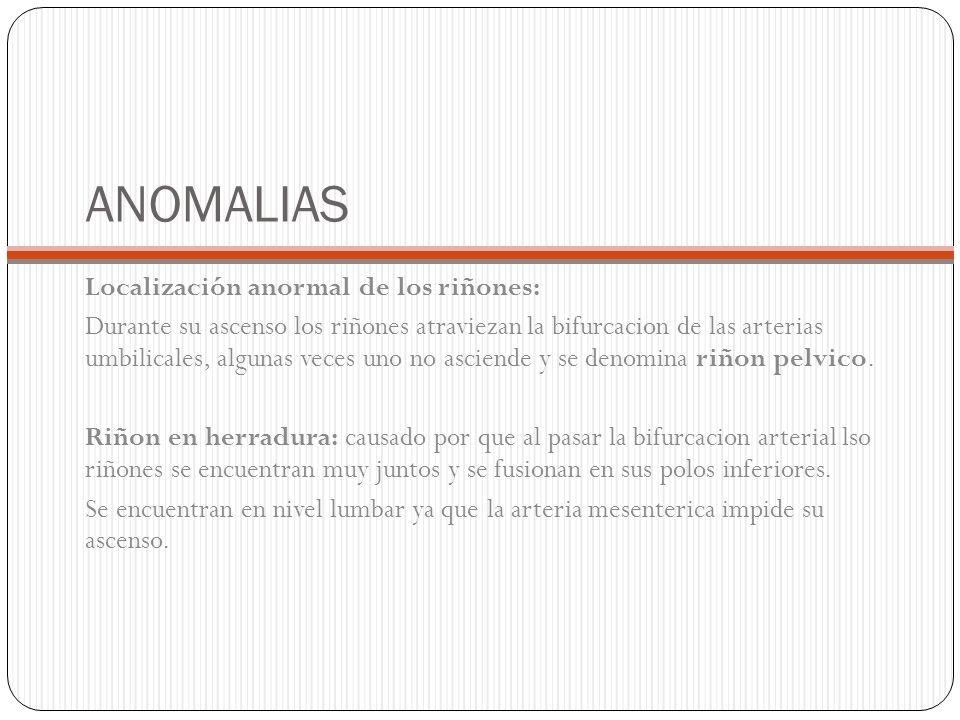 ANOMALIAS Localización anormal de los riñones: Durante su ascenso los riñones atraviezan la bifurcacion de las arterias umbilicales, algunas veces uno