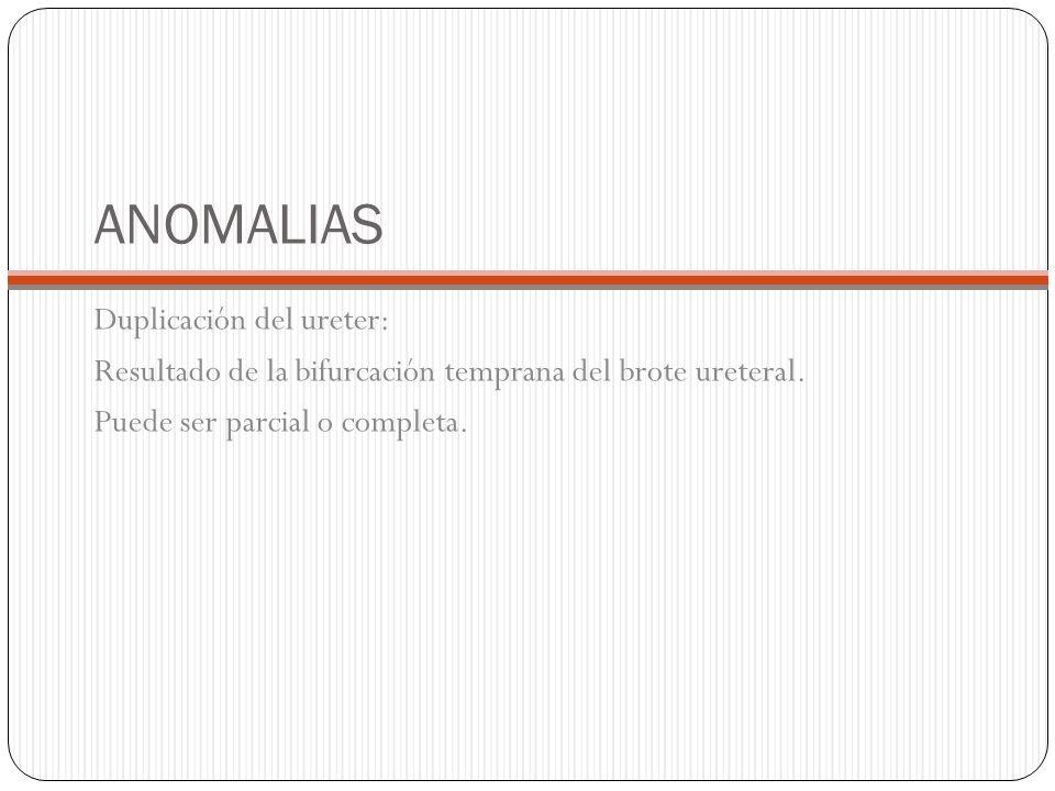ANOMALIAS Duplicación del ureter: Resultado de la bifurcación temprana del brote ureteral. Puede ser parcial o completa.