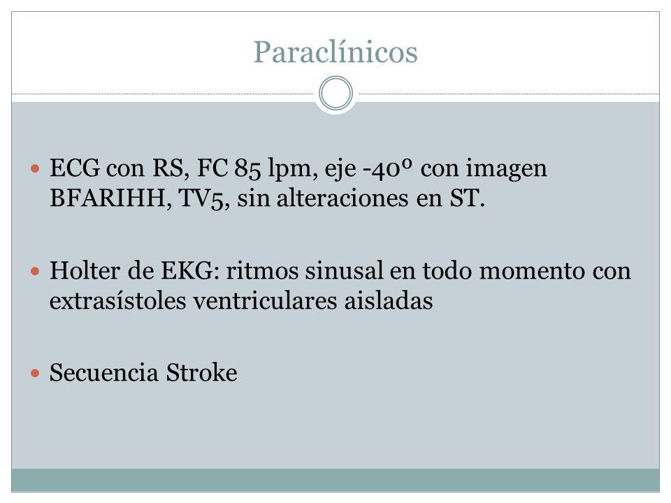 Paraclínicos ECG con RS, FC 85 lpm, eje -40º con imagen BFARIHH, TV5, sin alteraciones en ST. Holter de EKG: ritmos sinusal en todo momento con extras