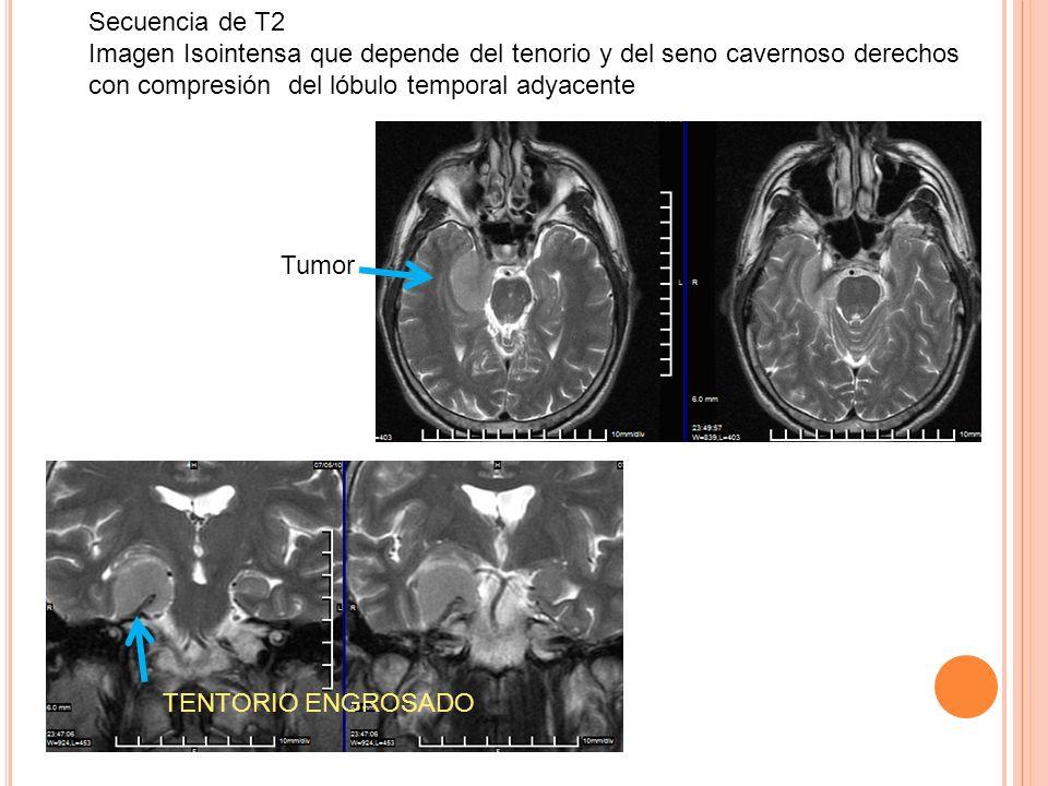 Secuencia de T2 Imagen Isointensa que depende del tenorio y del seno cavernoso derechos con compresión del lóbulo temporal adyacente TENTORIO ENGROSAD