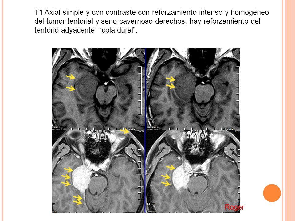 T1 Axial simple y con contraste con reforzamiento intenso y homogéneo del tumor tentorial y seno cavernoso derechos, hay reforzamiento del tentorio ad