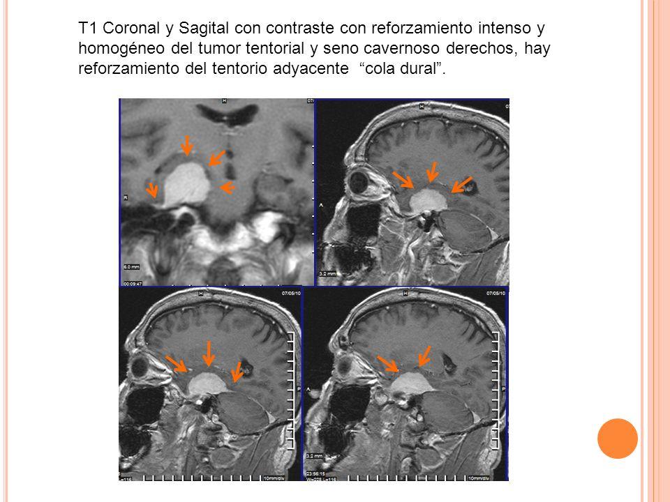 T1 Coronal y Sagital con contraste con reforzamiento intenso y homogéneo del tumor tentorial y seno cavernoso derechos, hay reforzamiento del tentorio