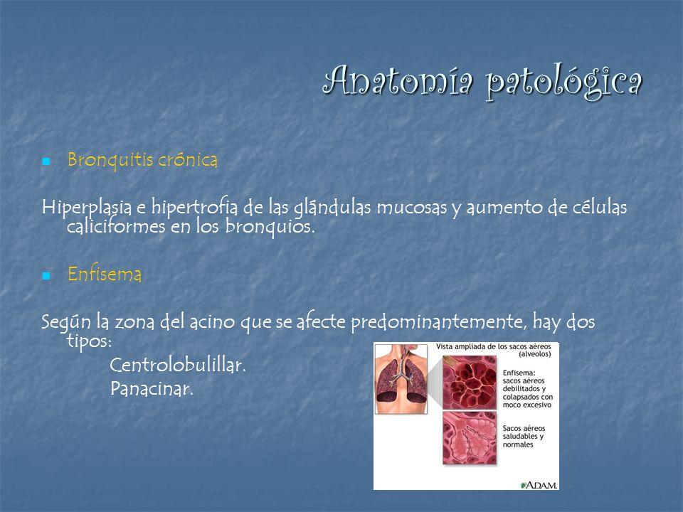 Anatomía patológica Bronquitis crónica Hiperplasia e hipertrofia de las glándulas mucosas y aumento de células caliciformes en los bronquios. Enfisema
