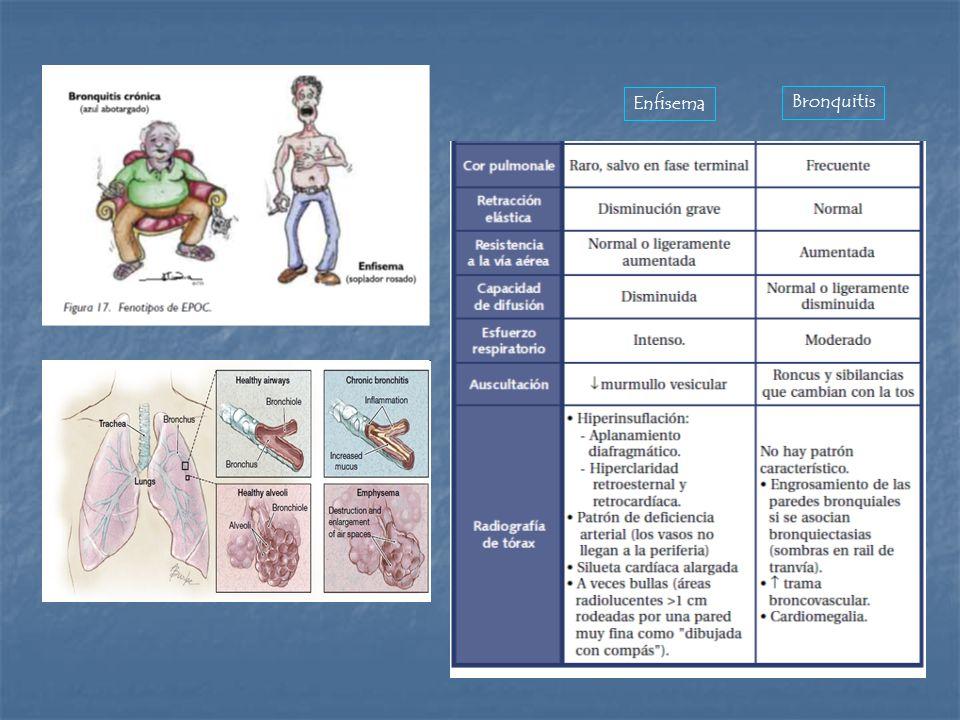 Enfisema Bronquitis