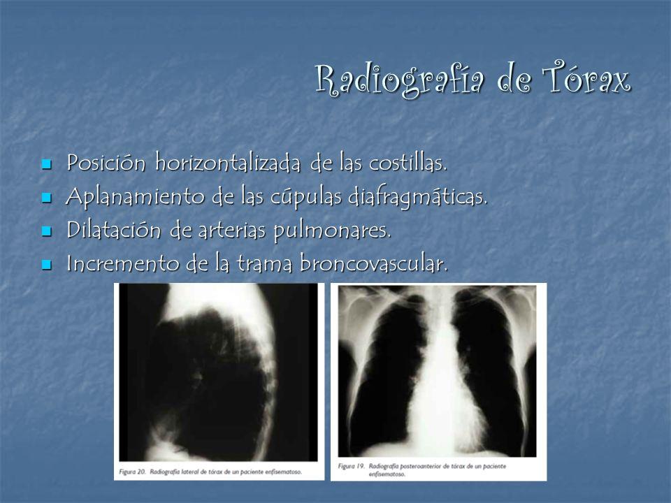 Radiografía de Tórax Posición horizontalizada de las costillas. Posición horizontalizada de las costillas. Aplanamiento de las cúpulas diafragmáticas.