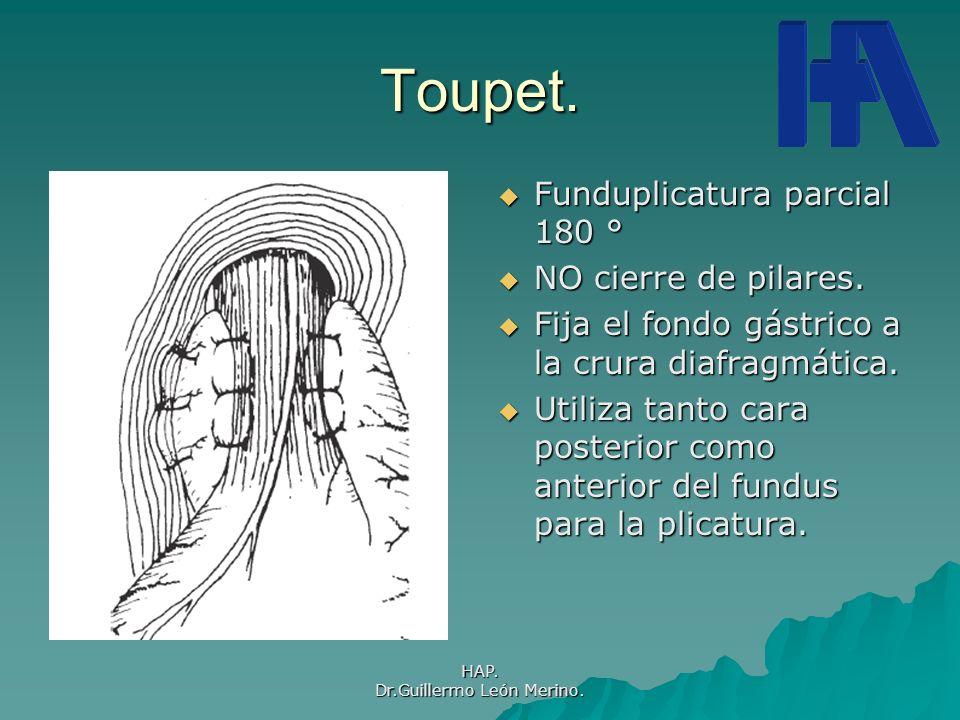 HAP. Dr.Guillermo León Merino. Toupet. Funduplicatura parcial 180 ° Funduplicatura parcial 180 ° NO cierre de pilares. NO cierre de pilares. Fija el f