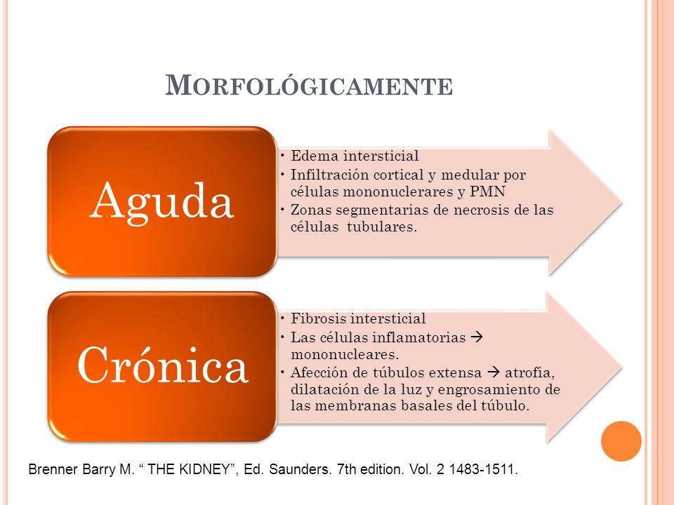 M ORFOLÓGICAMENTE Edema intersticial Infiltración cortical y medular por células mononuclerares y PMN Zonas segmentarias de necrosis de las células tu