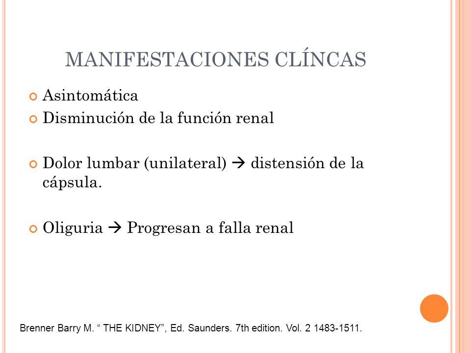 MANIFESTACIONES CLÍNCAS Asintomática Disminución de la función renal Dolor lumbar (unilateral) distensión de la cápsula. Oliguria Progresan a falla re