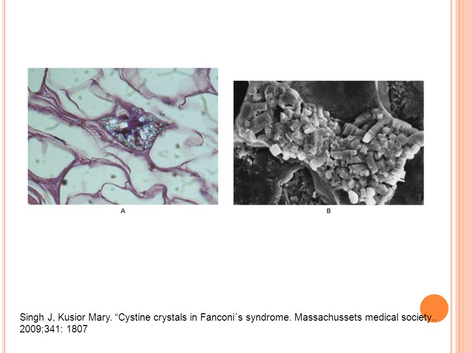 Singh J, Kusior Mary. Cystine crystals in Fanconi´s syndrome. Massachussets medical society.. 2009;341: 1807