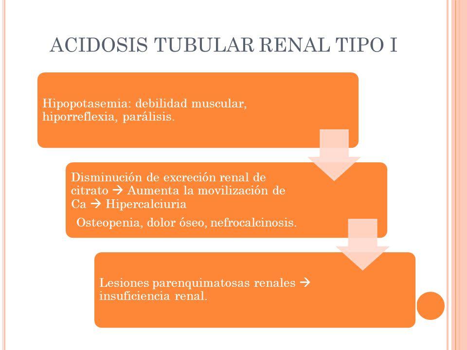 ACIDOSIS TUBULAR RENAL TIPO I Hipopotasemia: debilidad muscular, hiporreflexia, parálisis. Disminución de excreción renal de citrato Aumenta la movili