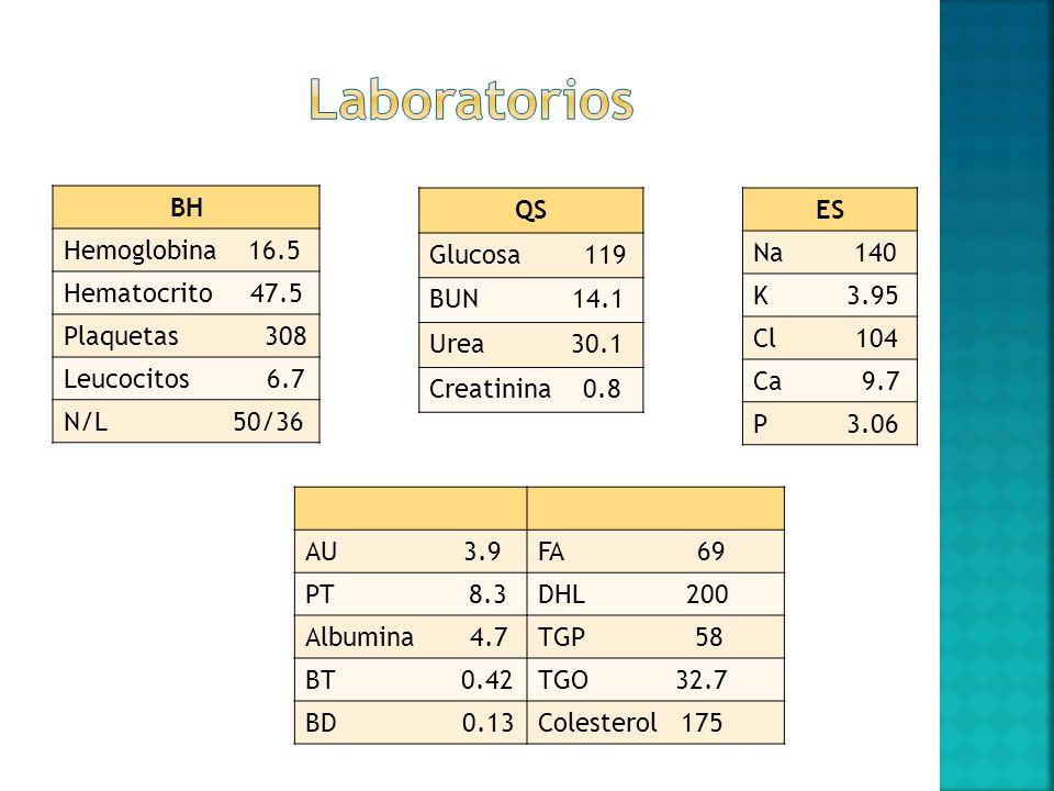 BH Hemoglobina 16.5 Hematocrito 47.5 Plaquetas 308 Leucocitos 6.7 N/L 50/36 QS Glucosa 119 BUN 14.1 Urea 30.1 Creatinina 0.8 ES Na 140 K 3.95 Cl 104 C