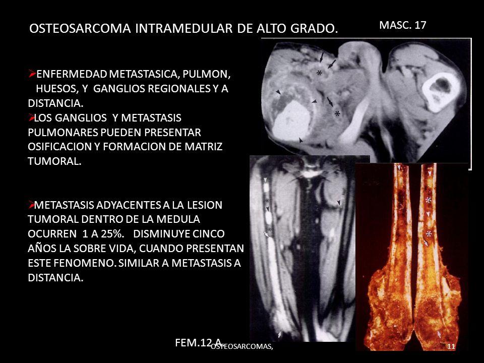 OSTEOSARCOMA INTRAMEDULAR DE ALTO GRADO. ENFERMEDAD METASTASICA, PULMON, HUESOS, Y GANGLIOS REGIONALES Y A DISTANCIA. LOS GANGLIOS Y METASTASIS PULMON
