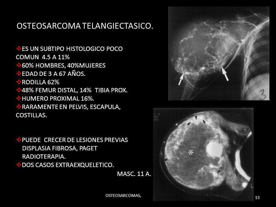 OSTEOSARCOMA TELANGIECTASICO. ES UN SUBTIPO HISTOLOGICO POCO COMUN 4.5 A 11% 60% HOMBRES, 40%MUJERES EDAD DE 3 A 67 AÑOS. RODILLA 62% 48% FEMUR DISTAL