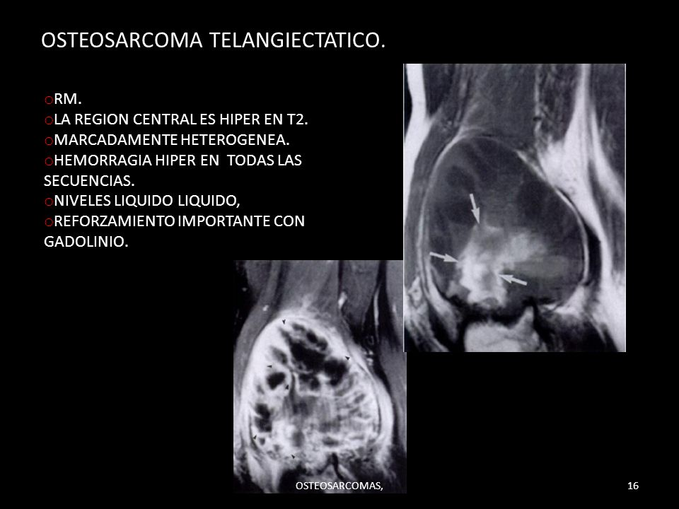 OSTEOSARCOMA TELANGIECTATICO. o RM. o LA REGION CENTRAL ES HIPER EN T2. o MARCADAMENTE HETEROGENEA. o HEMORRAGIA HIPER EN TODAS LAS SECUENCIAS. o NIVE