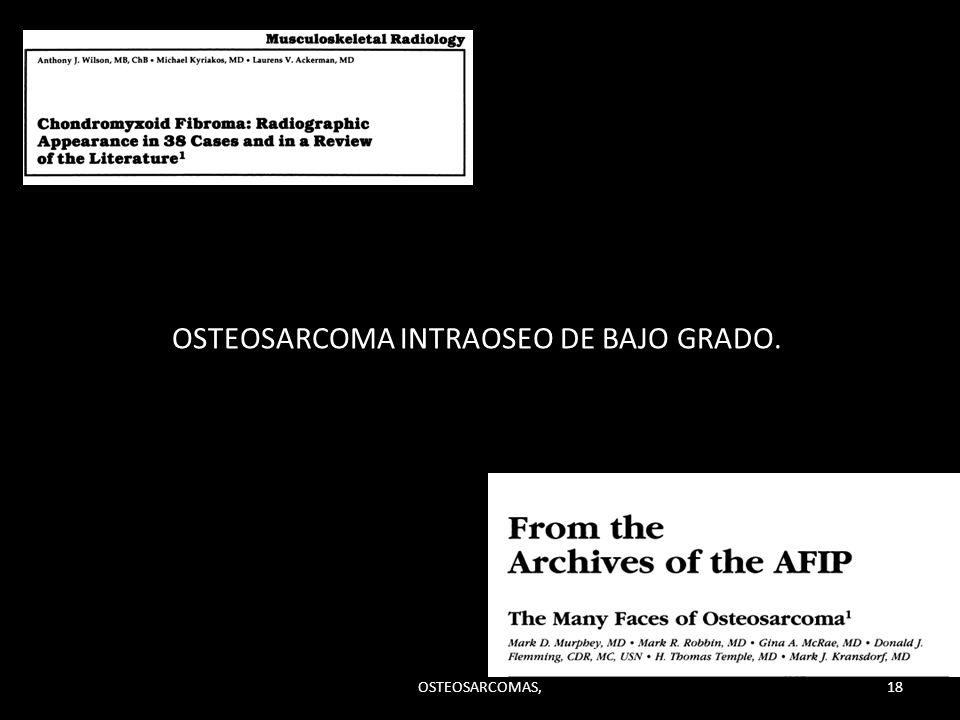 OSTEOSARCOMA INTRAOSEO DE BAJO GRADO. 18OSTEOSARCOMAS,