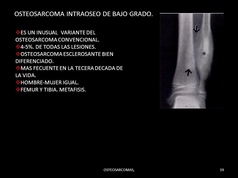 OSTEOSARCOMA INTRAOSEO DE BAJO GRADO. ES UN INUSUAL VARIANTE DEL OSTEOSARCOMA CONVENCIONAL. 4-5%. DE TODAS LAS LESIONES. OSTEOSARCOMA ESCLEROSANTE BIE