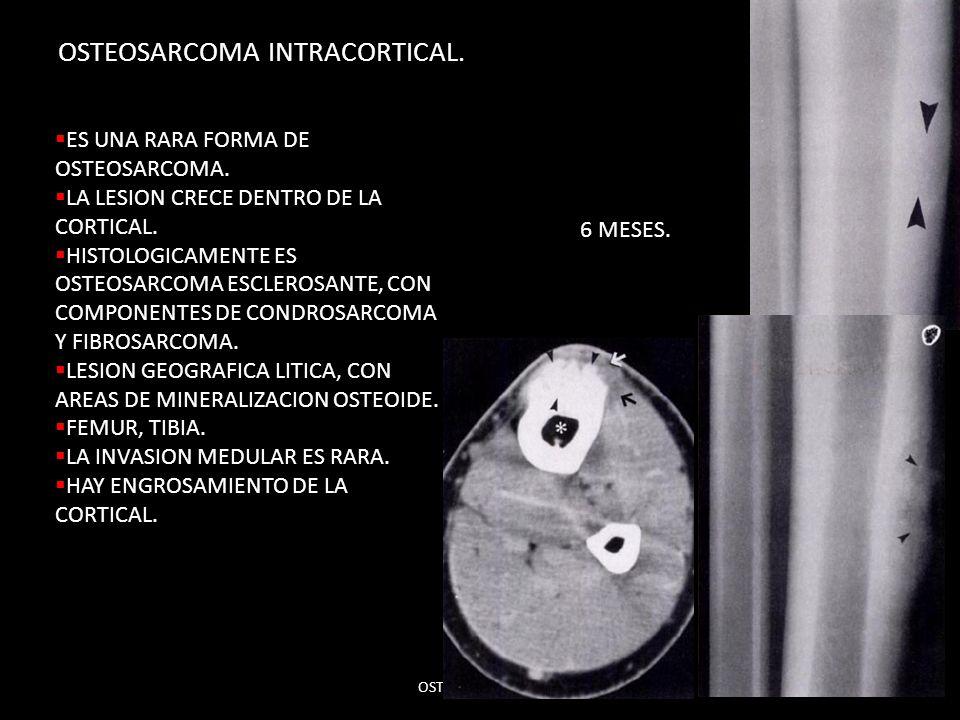 OSTEOSARCOMA INTRACORTICAL. OSTEOSARCOMAS,31 ES UNA RARA FORMA DE OSTEOSARCOMA. LA LESION CRECE DENTRO DE LA CORTICAL. HISTOLOGICAMENTE ES OSTEOSARCOM