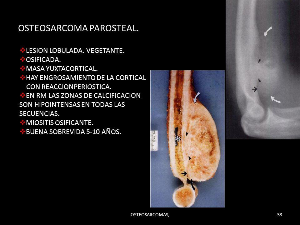 OSTEOSARCOMA PAROSTEAL. OSTEOSARCOMAS,33 LESION LOBULADA. VEGETANTE. OSIFICADA. MASA YUXTACORTICAL. HAY ENGROSAMIENTO DE LA CORTICAL CON REACCIONPERIO